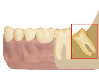 восьмой зуб